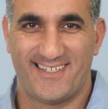 הסטארט-אפ הישראלי קוטנדו יגייס שבעה מיליון דולרים מהקרנות סקויה ובנצ'מרק