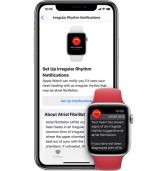 תביעה נגד אפל בנוגע לטכנולוגיית ניטור קצב לב ב-Apple Watch