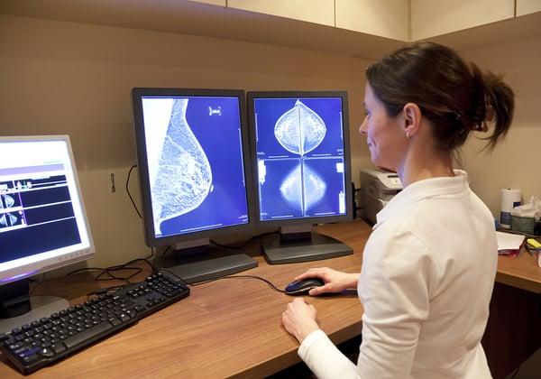 ה-AI מצליחה יותר. בדיקת ממוגרפיה לאיתור ואבחון מוקדם של סרטן השד. צילום אילוסטרציה: BigStock