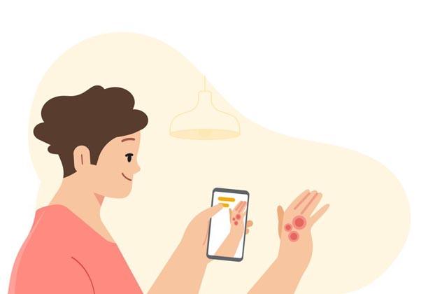 לזהות בעיות עור. אילוסטרציה: גוגל