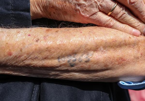 המספר שעל ידו של ניצול השואה היינץ קוניו. צילום: BigStock